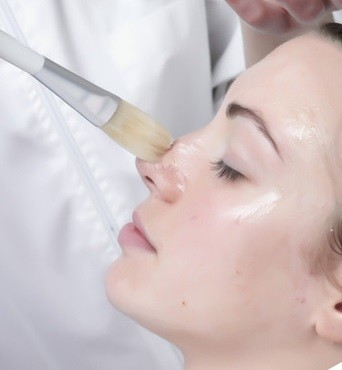 Facial Diamond Peel